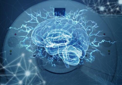 Imagenología cerebral, la mejor manera de ver tu cerebro